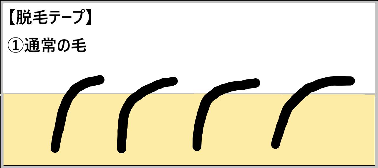 ①【脱毛テープ】通常の毛を示した画像