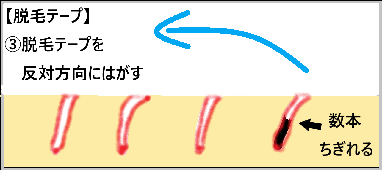 ③【脱毛テープ】脱毛テープを反対方向に剥がすとどうなるか示した画像