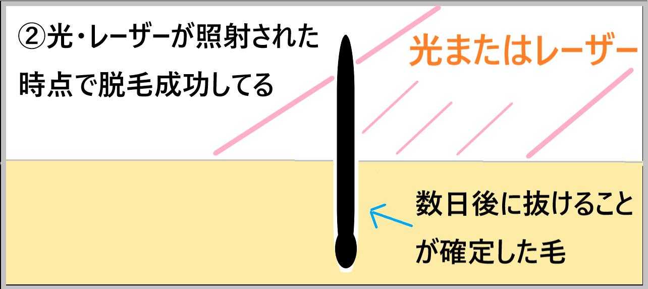 ②光、レーザーだ照射された時点で脱毛成功していることを示した画像