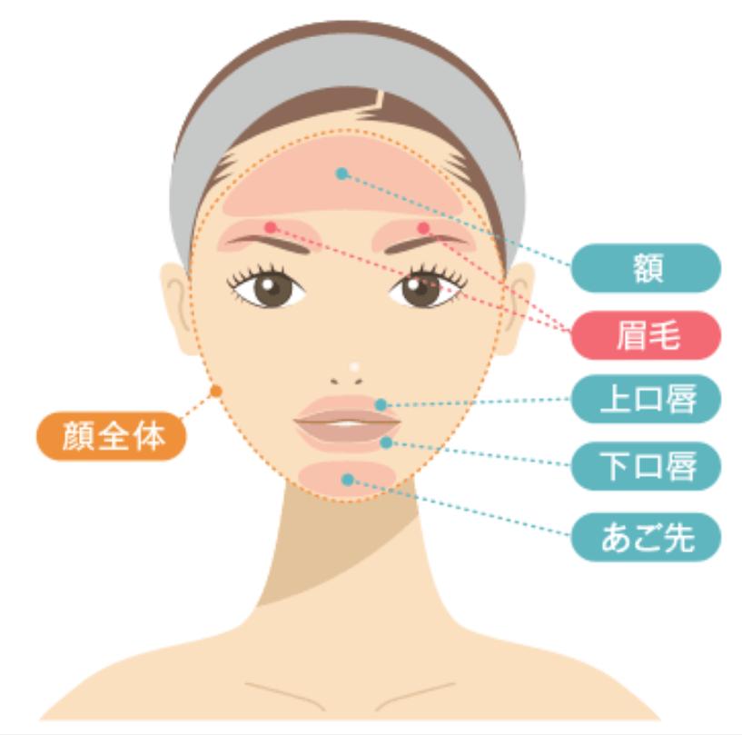 渋谷美容外科クリニックの顔脱毛の範囲を示した画像
