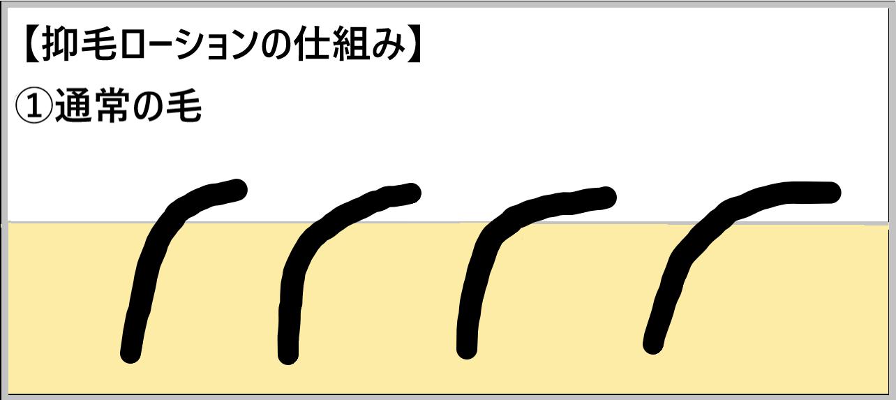 ①抑毛ローションを使うとどうなるか示したイラスト