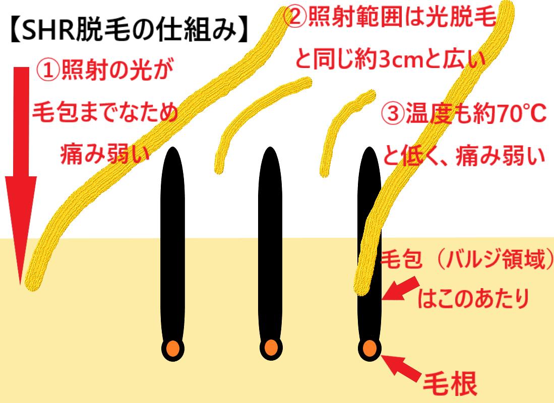 SHR脱毛の仕組みを表した画像