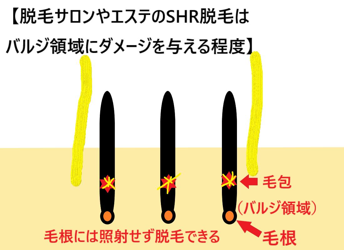 脱毛サロンやエステのSHR脱毛はバルジ領域にダメージを与える程度ということを示した画像