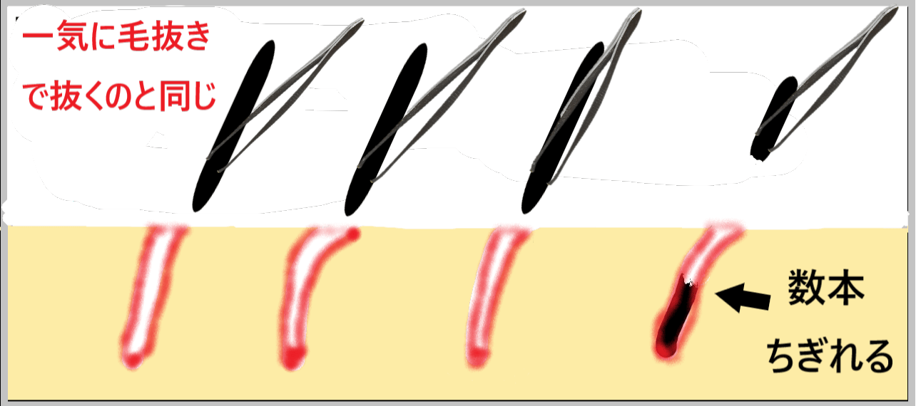 脱毛ワックスが毛抜きで一気に毛を抜くことと肌ダメージが同じということを示した画像
