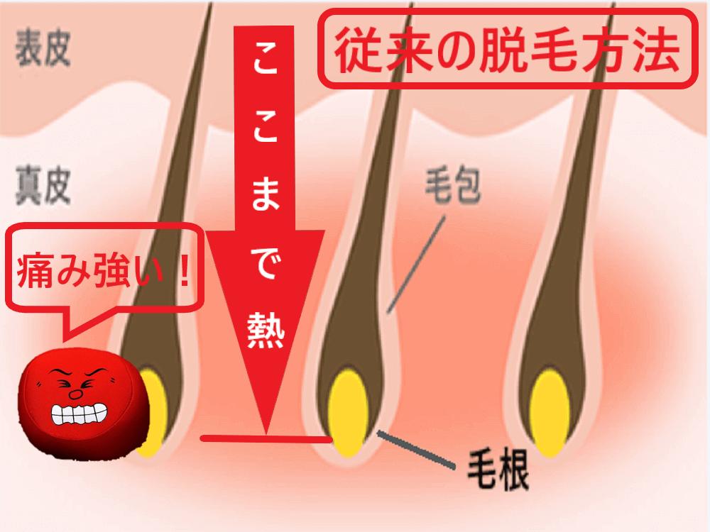 従来の脱毛方法は毛根まで熱を加えなくてはいけないことを示した画像