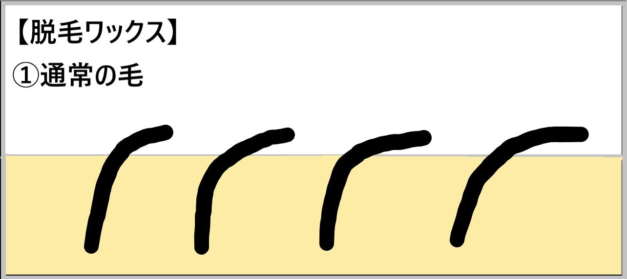 ①【脱毛ワックス】通常の毛を示したイラスト
