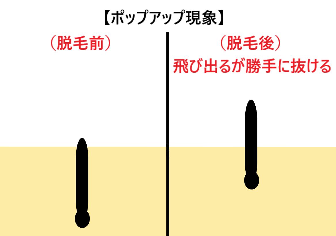 ポップアップ現象の仕組みを表した図 (1)