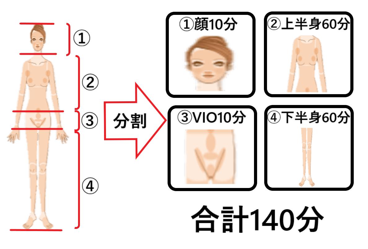 レーザー脱毛は顔、上半身、VIOライン、下半身とパーツごとに分けて脱毛されることを示した画像