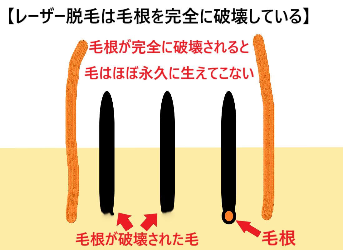 レーザー脱毛は毛根を完全に破壊していることを示した画像