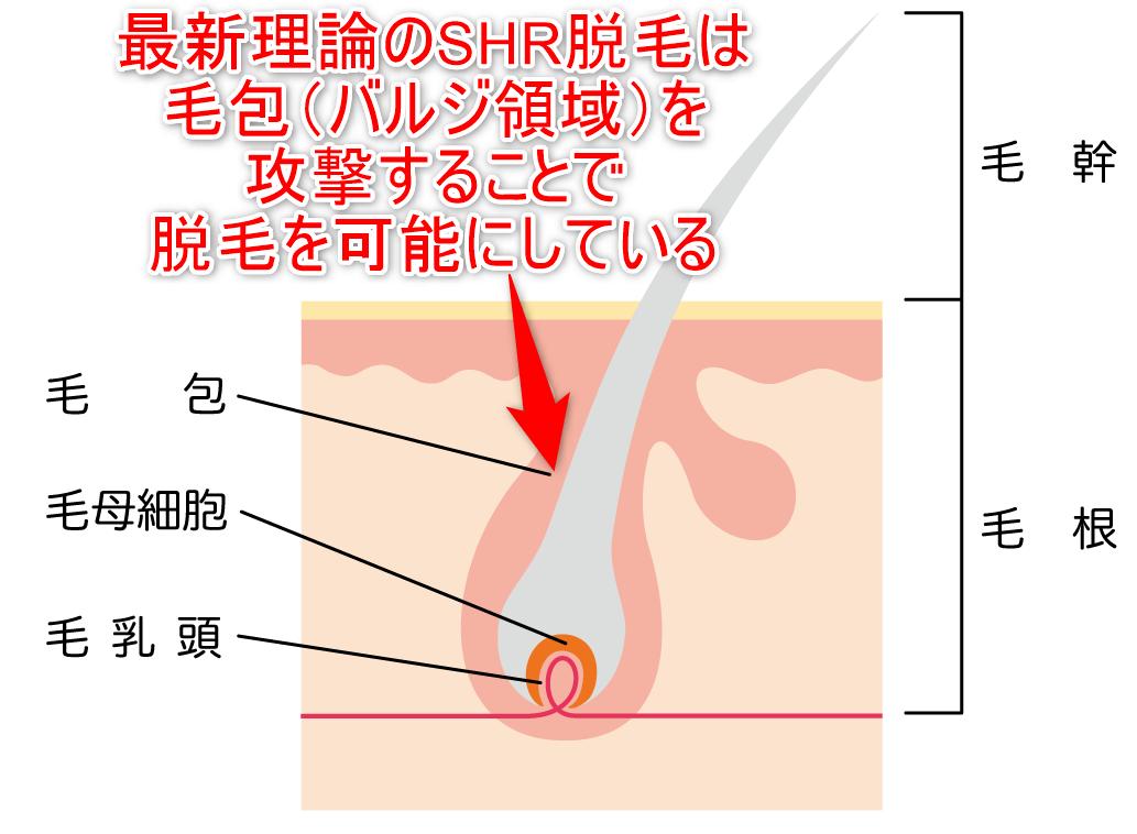 最新理論のSHR脱毛は毛包(バルジ領域)までの照射で脱毛を可能にしていることを示した画像