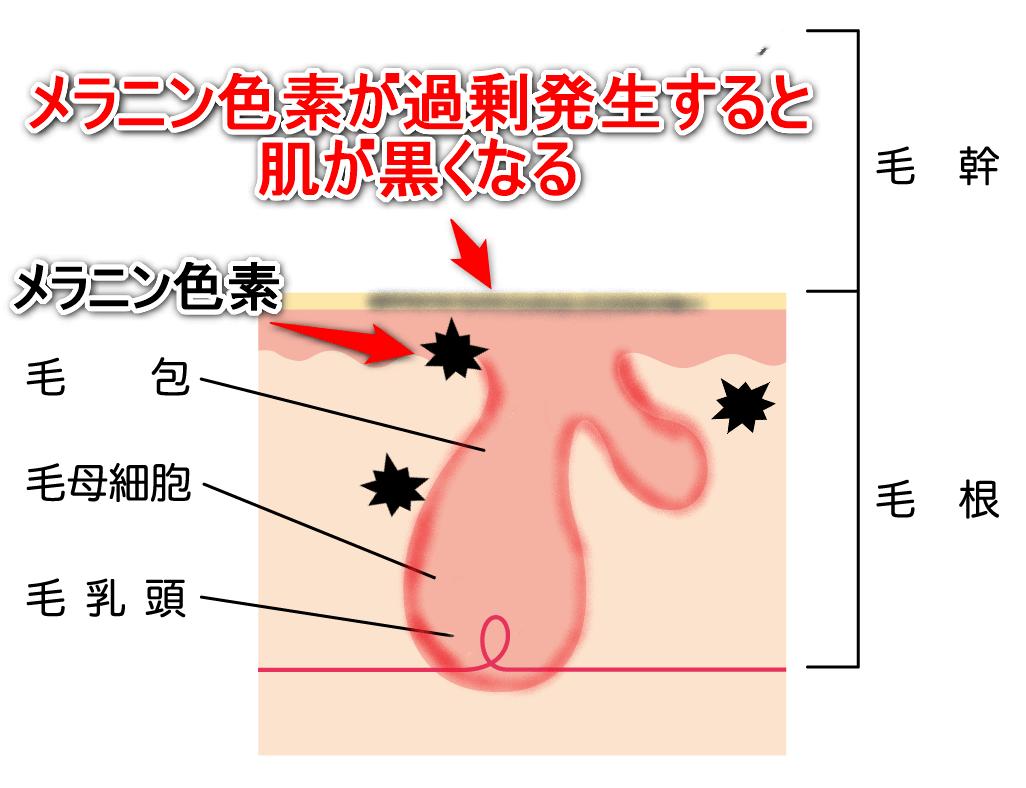 全身脱毛のデメリットとしてメラニン色素が過剰発生すると肌が黒くなる可能性があることを示した画像
