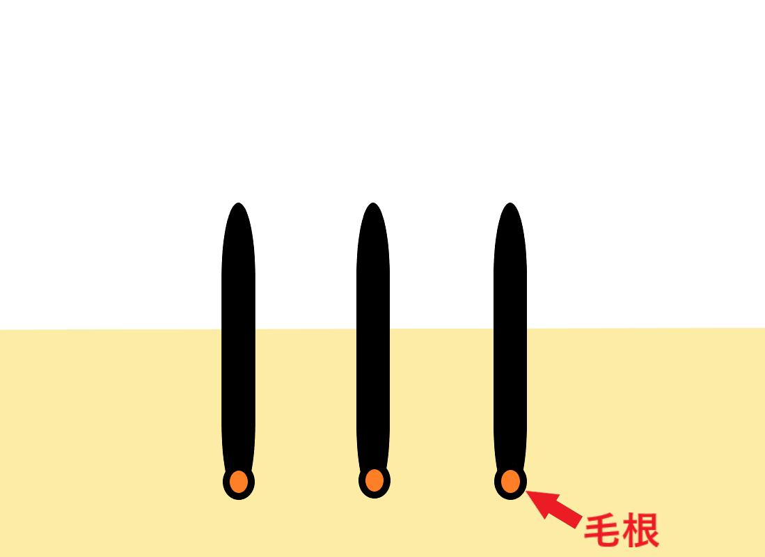 照射のサンプル画像