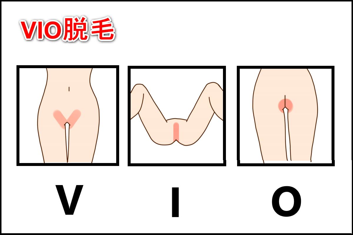 VIO脱毛の図